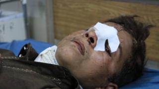 Ребенок после авианалета в Афганистане