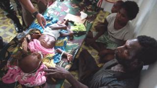 والدا طفلة مصابة بسوء تغذية شديد يحيطان بها في المستشفى في قلق