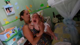 Brazil has seen a growing number of cases of microcephaly in recent months