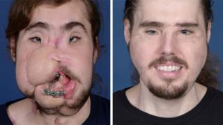 안면 이식 수술을 받은 캐머런 언더우드