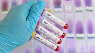 A photograph of a person in rubber gloves holding up four tubes containing blood specimens. The containers have labels reading HCV, HBV, Syphillis and HIV