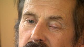 Aksel's injured eye a year later