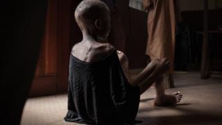 Dünya genelinde 149 milyon çocuk açlığa bağlı gelişim sorunları yaşıyor.
