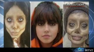 Screenshot of Iranian TV broadcast showing Sahar Tabar before and after plastic surgery