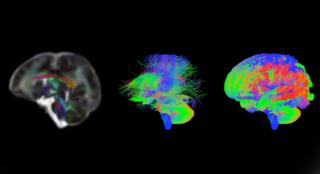 Baby brain scans reveal trillions of neural connections