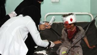 A Yemeni boy receives treatment at a hospital following a Saudi-led coalition air strike on a bus in Dahyan, Saada province, on 9 August 2018
