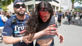 一名示威者扶着另一名血流披面的示威者。