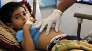 ربع الوفيات بسبب الكوليرا من الأطفال