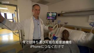 世界を揺るがす――手軽に人体の中をのぞく アプリで超音波検査