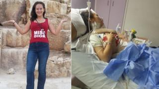 Olivia Fairclough before her accident and in a hospital bed