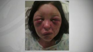 Terri-Louise Graham after she was attacked by her ex-partner