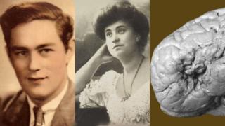 H.M., Dora y el cerebro de Monsieur Leborgne