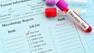 Zika virus test