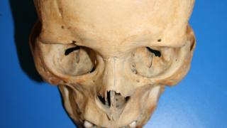 This skull has marks which suggests the individual survived being shot with an arrow