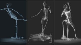 Degas x rays