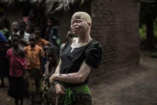 Wanaharakati wanasema hatua hiyo itasaidia kupunguza unyanyapaa dhidi ywa watu walio na ulemavu wa ngozi yaani albinism