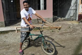 Óscar lost a leg in an accident at work, he says he is not getting any support in Honduras