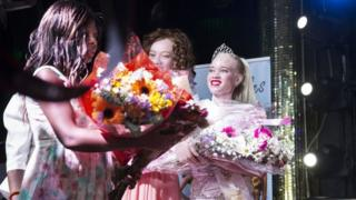 Miss Albino dey collect her prize