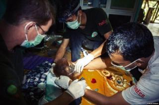 ओरांगऊटानवर सुरू असलेले उपचार