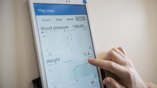 혈압을 측정하는 앱