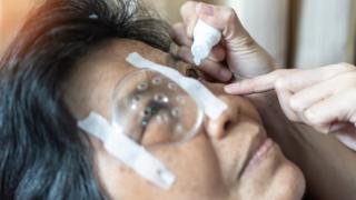 Woman getting eye drops