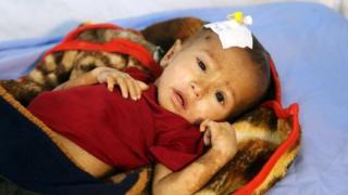 1.8 milyan oo caruur ah ayaa waxaa ku habsatay nafaqo daro dalka Yamen