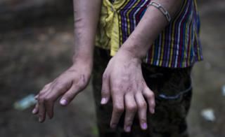San Kay Khine showing her scarred and damaged hands