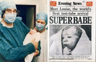 Louise Brown is seen at birth and on the front of a newspaper