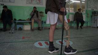 In this photograph taken on February 13, 2018 shows an Afghan amputee walking with his prosthetic leg at a hospital run by the International Committee of the Red Cross (ICRC) for war victims and the disabled in Kabul