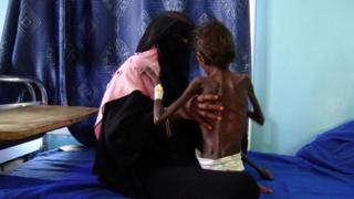 Guerra en Yemen: 3 condiciones para la paz en uno de los conflictos más sangrientos del mundo hoy - BBC News Mundo