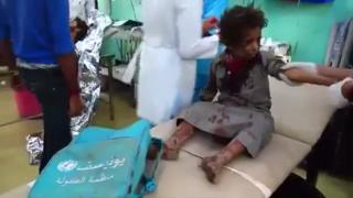 Injured child in Yemen
