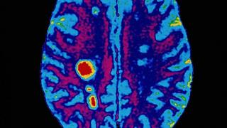 A brain scan showing signs suggestive of multiple sclerosis