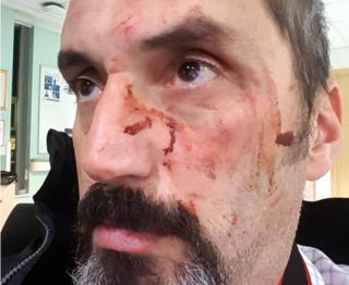 Dimitris Legakis with injuries to his face after the attack