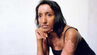 Ahila - who has psoriasis
