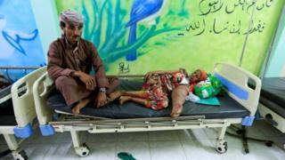 بیماران سرطانی در یمن از درمان مناسب محرومند