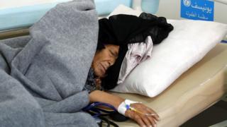 A cholera-infected Yemeni woman receives treatment at a hospital amid cholera outbreak in Sanaa, Yemen, 28 May 2017.