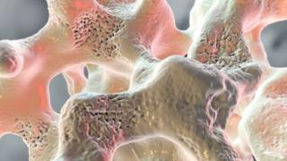 Spongy bone tissue influenced by Osteoporosis