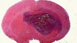 Section of a brain tumour in a mouse seen under the microscope