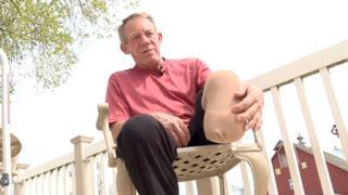 Kurtis Kaser shows where he cut his leg
