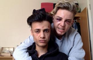 James and Dain after the attack