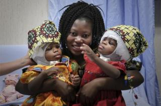 in_pictures A smiling woman holds two infants, one in each arm, whose heads are bandaged following surgey.