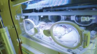 Новорожденный ребенок в Ровенском перинатальном центре, 2013