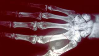microchip implantado na mão