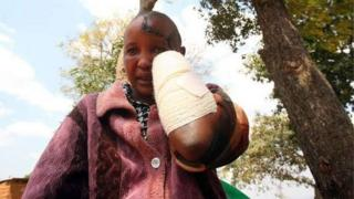 Kenyan woman with hacked hand