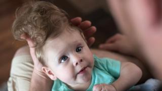 Los médicos les dijeron a los padres de Bentley que su hijo no sobreviviría.