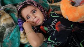 طفلة يمنية في إحدى مستشفيات صنعاء