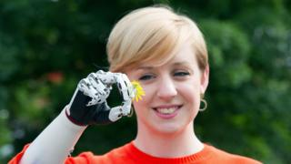 Nicky Ashwell with her bionic hand holding a flower