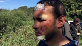 Jedan od migranata u Bosni sa vidnim povredama glave