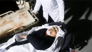 Afganistanda yaralanan bir sivil