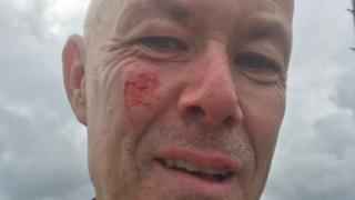 Cyclist Phil Williams with facial injuries after the hit and run